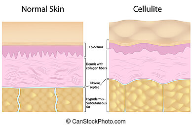 Overgrowing fat cells pushing up the fibrous septaes creating dimple appearance in cellulite. Eps8