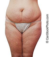 cellulitis, niezdrowy, kobiety