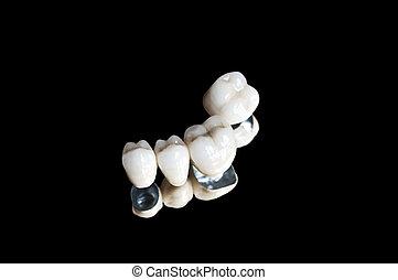 cerámico, dental, coronas
