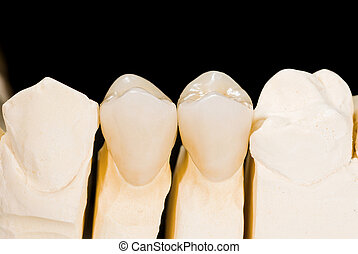 Ceramic crowns - Ceramic premolar crowns on isolated black...