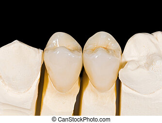 Ceramic crowns - Ceramic premolar crowns on isolated black ...