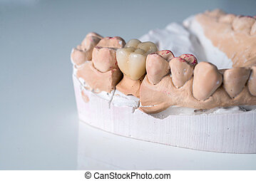 ceramic crowns in dental laboratory on white