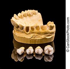 Ceramic dental implants