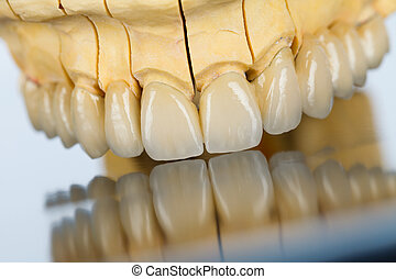 Ceramic teeth - dental bridge - An abstract view of a...