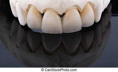 Ceramic teeth on a plaster model with a black background
