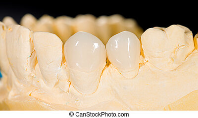 Ceramic veneers - Aesthetic ceramic veneers on the front ...