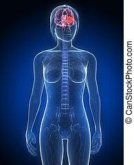 cerebal tumor - 3d rendered illustration of a transparent...