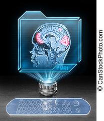 Cerebral activity