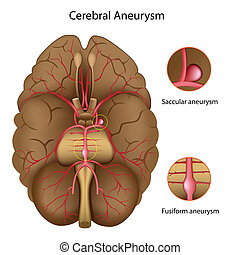 Cerebral aneurysm, eps10 - Types of Cerebral aneurysm, eps10