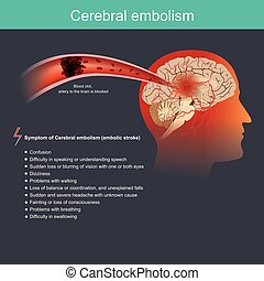 Cerebral embolism - It occurs when a particle from a part of...