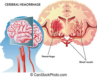 Cerebral hemorrhage - medical illustration of the effects of...