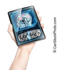 Cerebral scan
