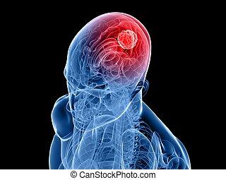 cerebrale, tumore