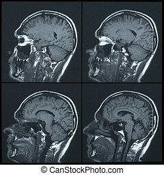 cerebro, magnético, imagen, (mri), resonancia