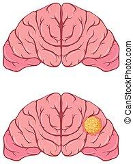 cerveau, humain, cancer