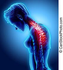 cervical, illustration., dos, -, 3d, rayon x, squelette, douloureux, cou