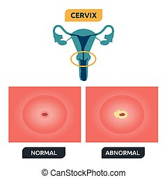 Cervix - Illustration of human cervical structure; normal...