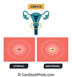 Cervix - Illustration of human cervical structure; normal vs...
