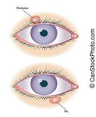 chalazion & sty - medical illustration of symptoms of...