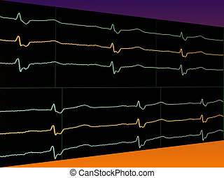 Channels ECG - Bright lines electrocardiogram on the monitor...