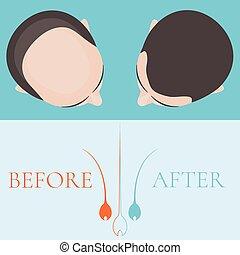 chauve, après, cheveux, traitement, homme, avant