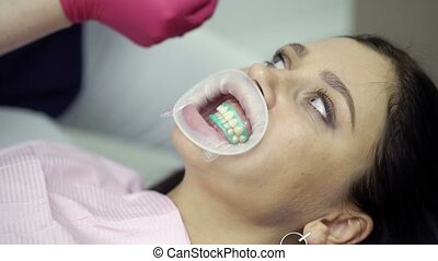 Checking teeth whitening with pallete in dental clinic
