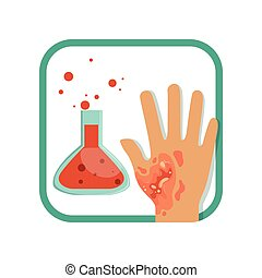 Chemical burn of third-degree. Hand with damaged outer (epidermis) and inner (dermis) layer of skin. Severe injury. Flat vector design for poster or brochure