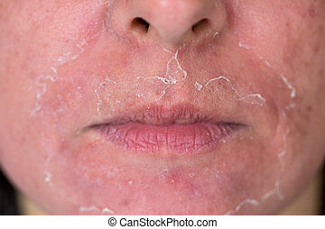 Chemical peeling - Front view of caucasian woman face after...