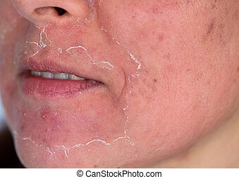 Side view of caucasian woman face after chemical peeling. Focus on mustache