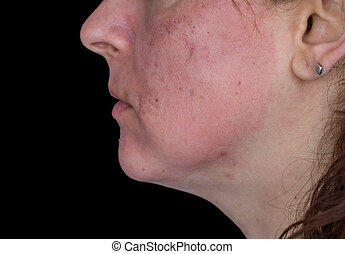 Chemical peeling - Side view of caucasian woman face after ...