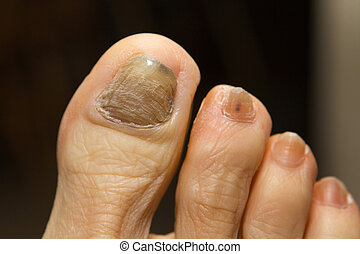 Ridged, thick and discolored toenail with fungus, a side effect caused by chemotherapy drugs administered during cancer treatments.