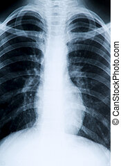 Chest radiograph shows extensive internal mass