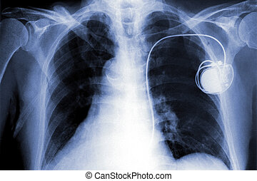 x-rays film