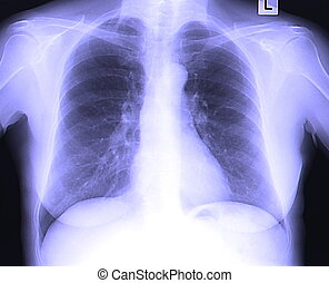 Chest x ray. Chest x ray vector illustration clip-art eps.