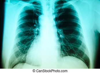 Chest  x- ray