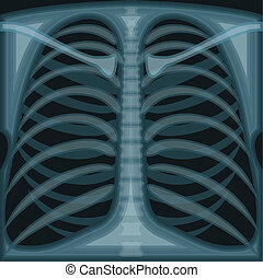 Chest X Ray - chest x ray vector illustration clip-art eps