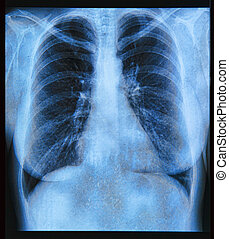Chest X-ray Image