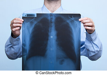 Chest x-ray - Man with his bellows (chest) x-ray, focused on...