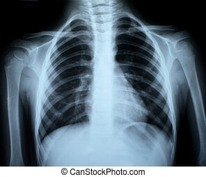 Chest xray - the xray photo of a human bones