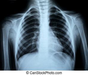 Chest xray - the xray photo of a human bones