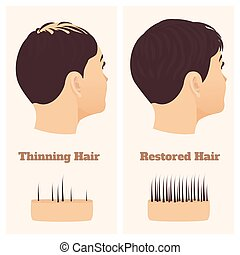 cheveux, côté, avant, traitement, perte, femme, vue, après