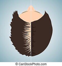 cheveux, chauve, avant, après, traitement, femme