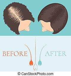 cheveux, femme, traitement, après, avant