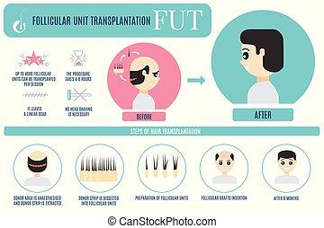 cheveux, fut, transplantation, hommes