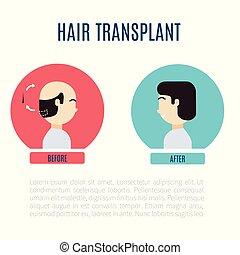 cheveux, hommes, transplantation