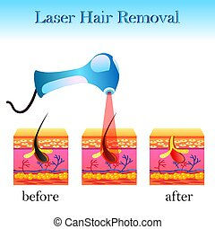 cheveux, laser, appareil, cellule, déménagement, structure