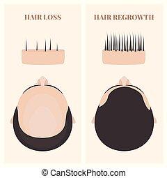 cheveux, transplantation, homme, regrowth, après, avant