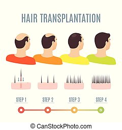 cheveux, transplantation, hommes