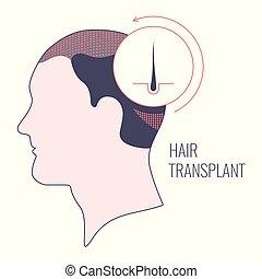 cheveux, transplantation, hommes, linéaire, gabarit, monde médical