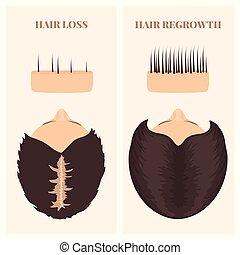 cheveux, vue, traitement, sommet, femme, après, perte, avant
